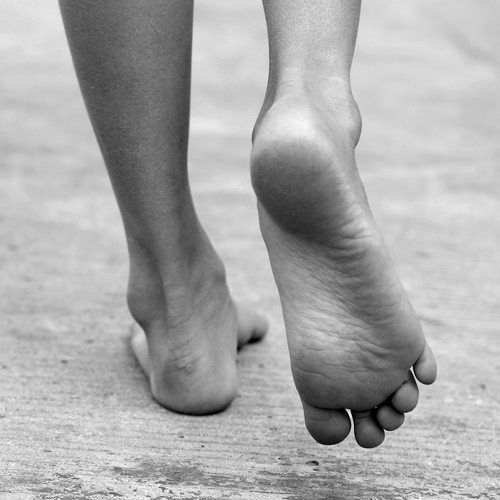 Sores from Diabetic Neuropathy