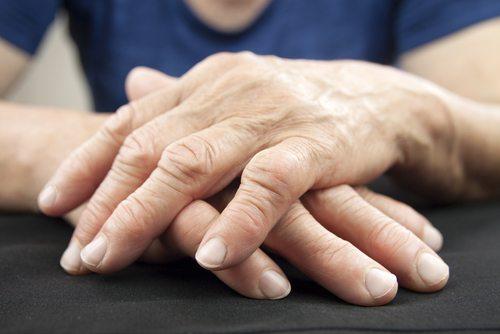 Rheumatoid Arthritis symptoms