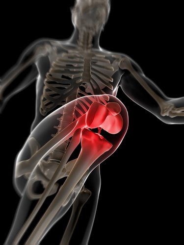 OsteoArthritis in Young People – Arrowhead Health Centers
