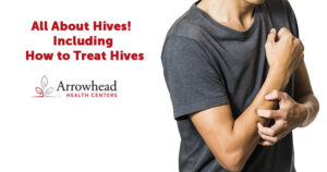 How to Treat Hives