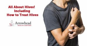 All About Hives! Including How to Treat Hives